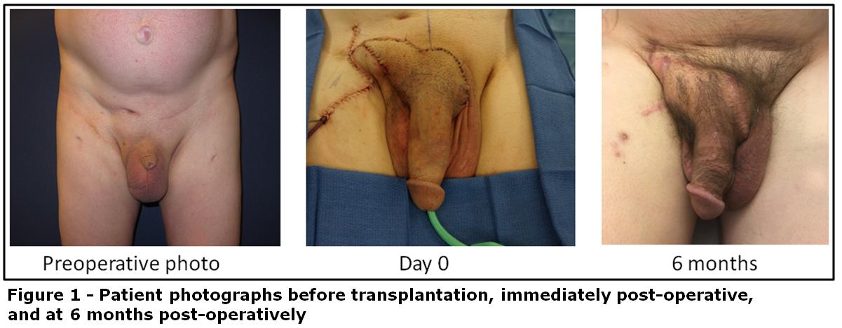 penis transplantation